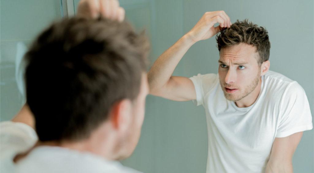 CBD for Hair Loss
